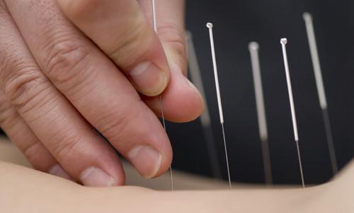 Acupuncture-500
